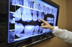 dental-x-rays-1024x680