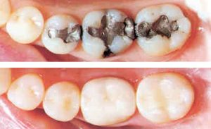 adp-white_fillings