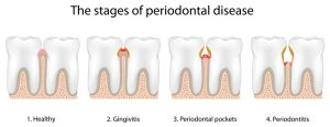 stages_gingivitis_sm